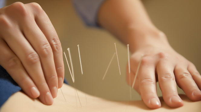 Toronto Naturopathic Doctor Acupuncture Services