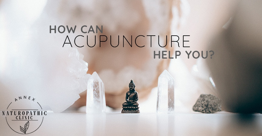 How Can Acupuncture Help You?   Annex Naturopathic Clinic   Toronto Naturopathic Doctors
