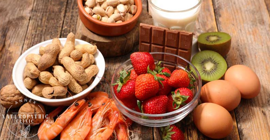 Common food allergies | Annex Naturopathic Clinic | Toronto Naturopathic Doctors