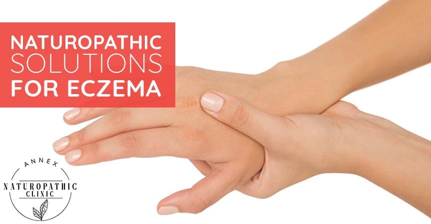 Naturopathic Solutions For Eczema   Annex Naturopathic Clinic   Toronto Naturopathic Doctors