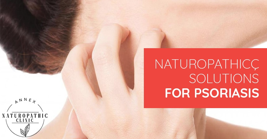 Naturopathic Solutions For Psoriasis | Annex Naturopathic Clinic | Toronto Naturopathic Doctors
